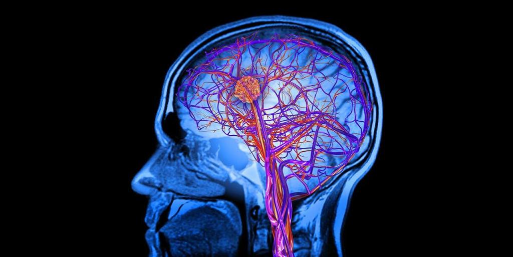 Beneficios medicos qigong cerebrovascular